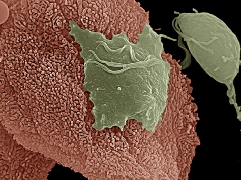 tvaginalis-parasite