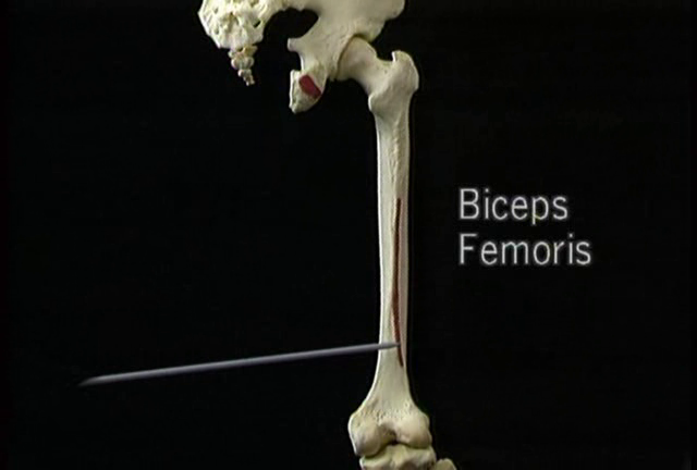 aclands anatomy dvd free download | MBBS Study Stuff