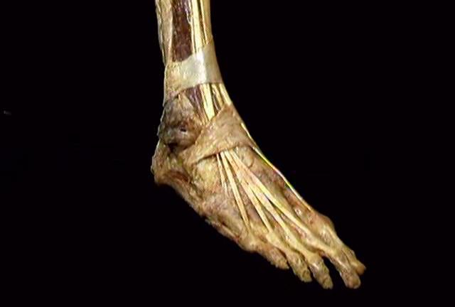 Acland anatomy videos free
